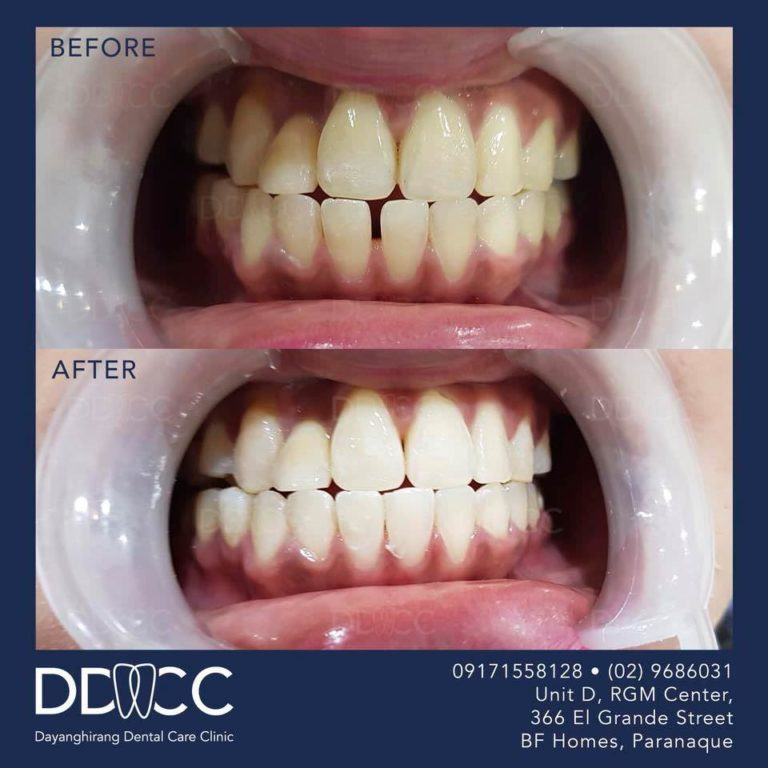Dayanghirang Dental Care Clinic - Before and After 2 - DDCC