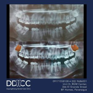 Dayanghirang Dental Care Clinic - Before and After 5 - DDCC