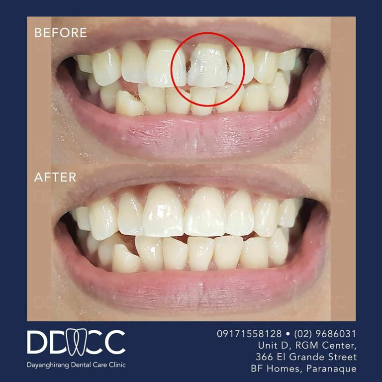 Dayanghirang Dental Care Clinic - Before and After 6 - DDCC
